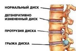 Рисунок 1. Диски позвоночника
