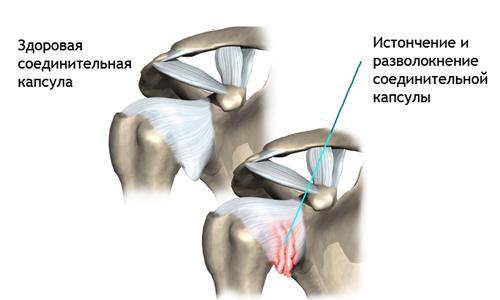 Плече-лопаточный остеохондроз