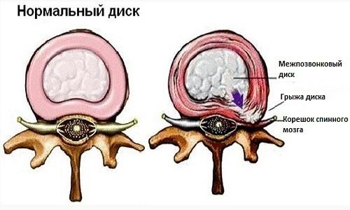 Общий вид нормального и поврежденного диска