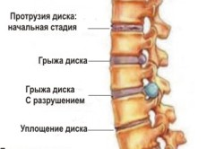 Стадии повреждения позвоночника при остеохондрозе