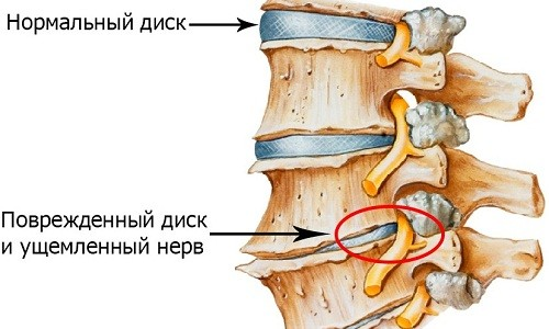 Позвоночник при остеохондрозе