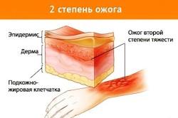 Изменения покровных тканей при ожоге 2 степени