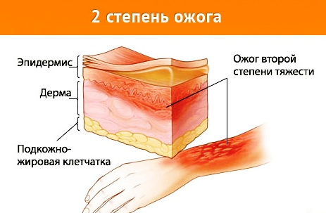 Постоянное лечение гормональными препаратами