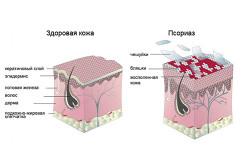 Чешуйки и бляшки псориаза на коже