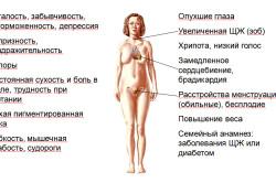Гипотиреоз