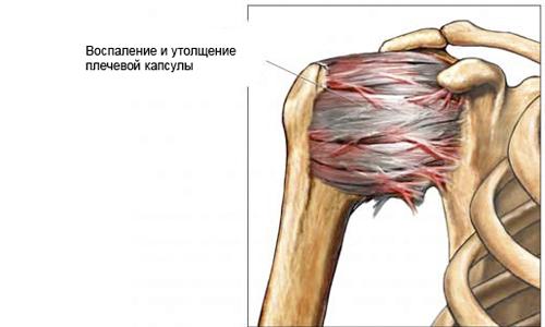 Простой периартрит плеча