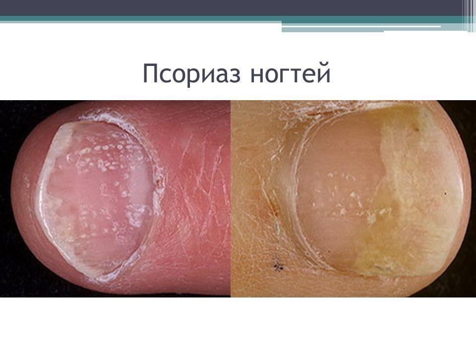 Как лечить ногтевой псориаз в домашних условиях