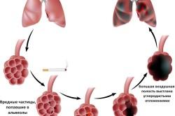 Схема образования эмфиземы легких