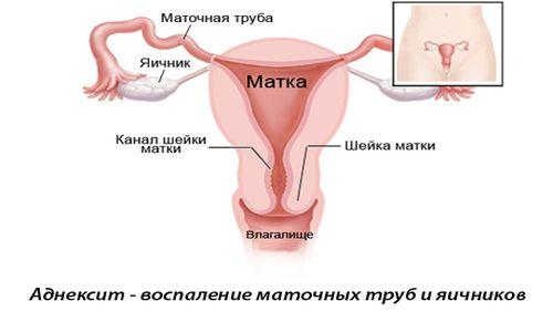 vaginalnie-svechi-pri-salpingooforite