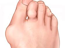 Отечность суставов - признак артроза стопы