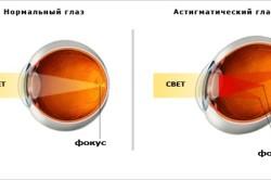 Глаз с астигматизмом и без