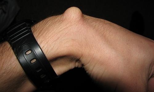 Проблема гигромы на руке