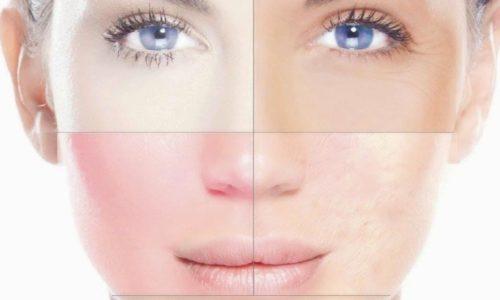 Аллергический дерматит на лице