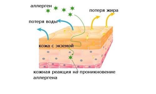 Схема образования экземы
