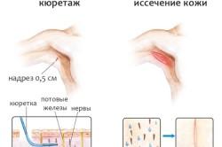 Кюрретаж подмышек при гипергидрозе