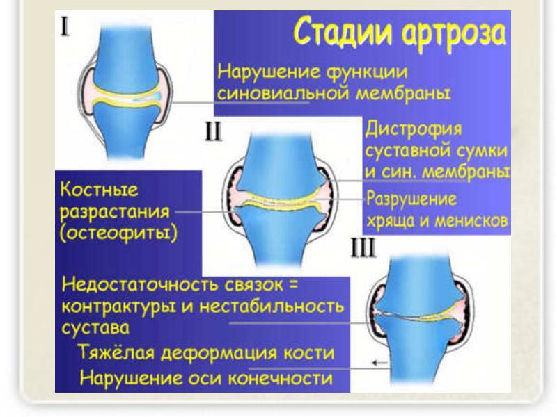 Утолщение ногтя на ногах лечения