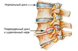 Схема хондроза грудного отдела позвоночника