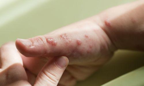 Заболевание отрубевидным лишаем