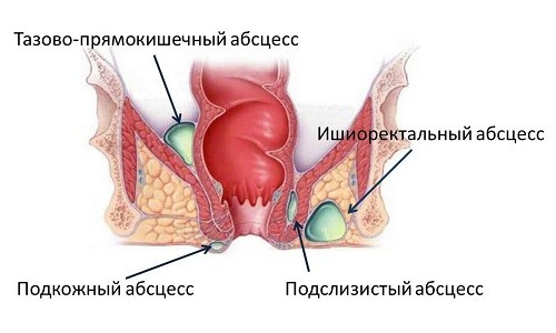 Парапроктит у младенца лечение в домашних условиях