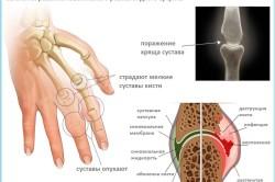 Патология развития ревматоидного артрита