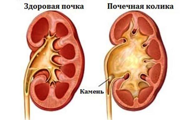Лечение почечных колик в