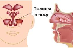 Схема полипов в носу