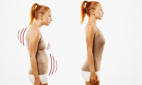 Проблема сутулости спины