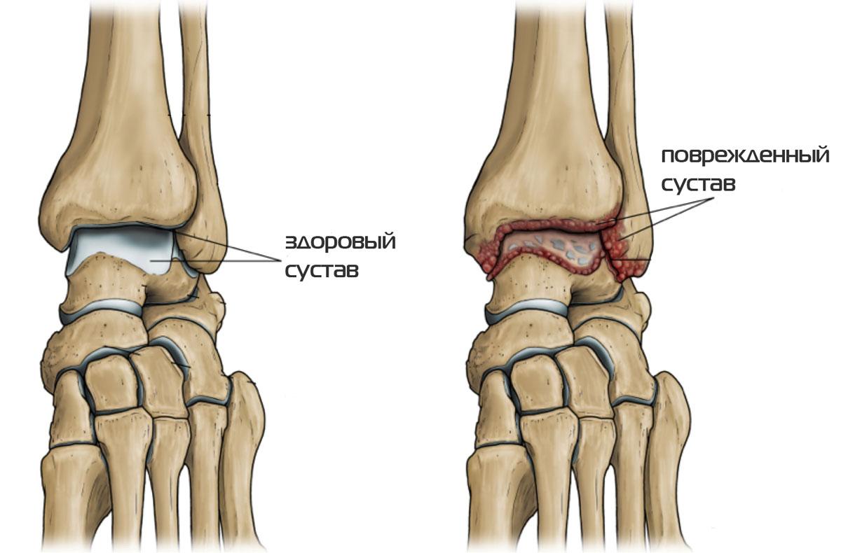 лечение артрита артроза голеностопного сустава народными средствами