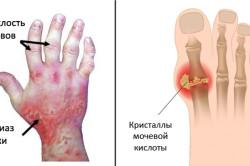 Изображение псориатического полиартрита