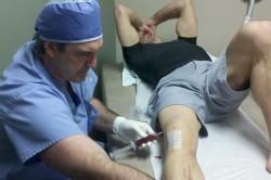 Пункция коленного сустава для выявления синовита