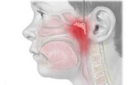 Увеличенная глоточная миндалина (аденоиды)