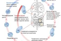Схема заражения амебной дизентерией