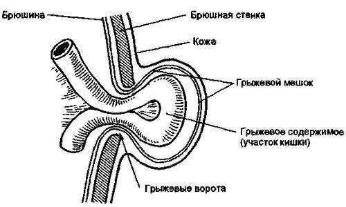 Схема паховой грыжи