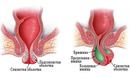 Схематичное изображение грыжи кишечника