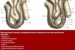 Сравнение врожденной и приобретенной грыжи яичка