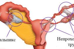 Схема непроходимости маточных труб