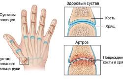 Изображение - Народные средства от суставов пальцев рук artroz1-250x166