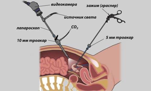 Для выполнения хирургических манипуляций используют эндоскопические инструменты, вводимые через небольшие проколы в мягких тканях