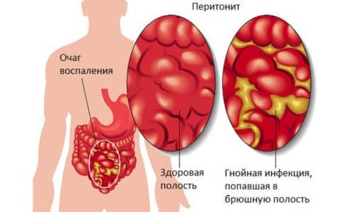 Операция показана при перитоните и других опасных для жизни осложнениях